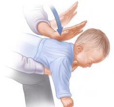 Engasgo em bebês. O que fazer?