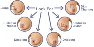Signs-of-Breast-Cancer