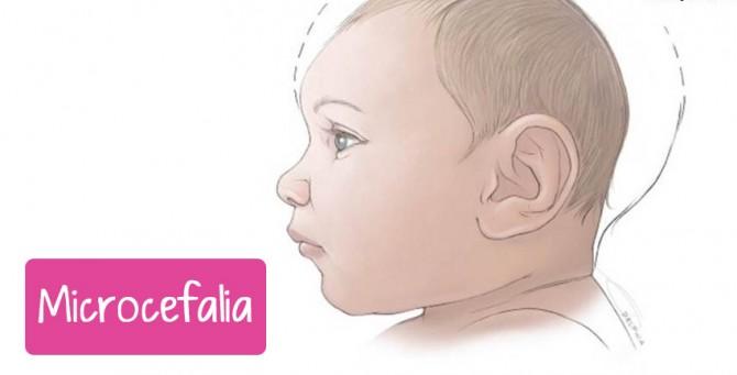 Alerta Gestantes: como prevenir microcefalia?